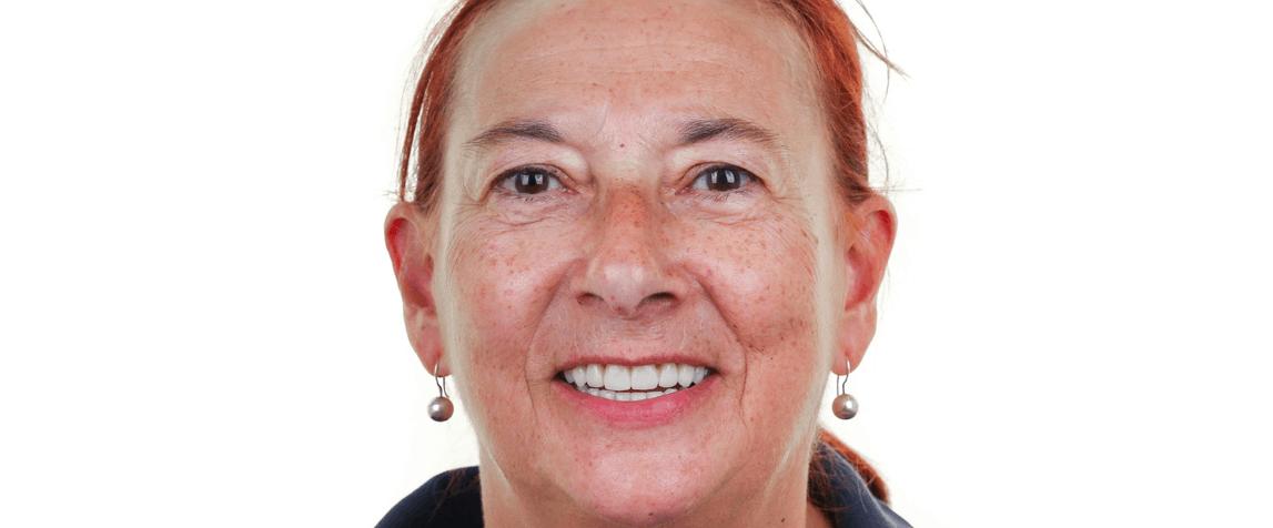 Maria Baerbedo- depois